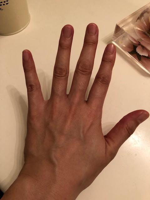 日焼けした手の甲